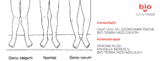Deviatiile de ax ale genunchilor