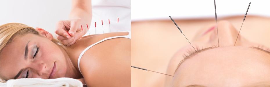 Acupunctura Bio Terra Med Negulici