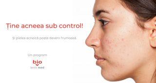 Tine acneea sub control