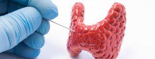 Endocrinologie - noduli tiroidieni - punctia aspirativa cu ac fin