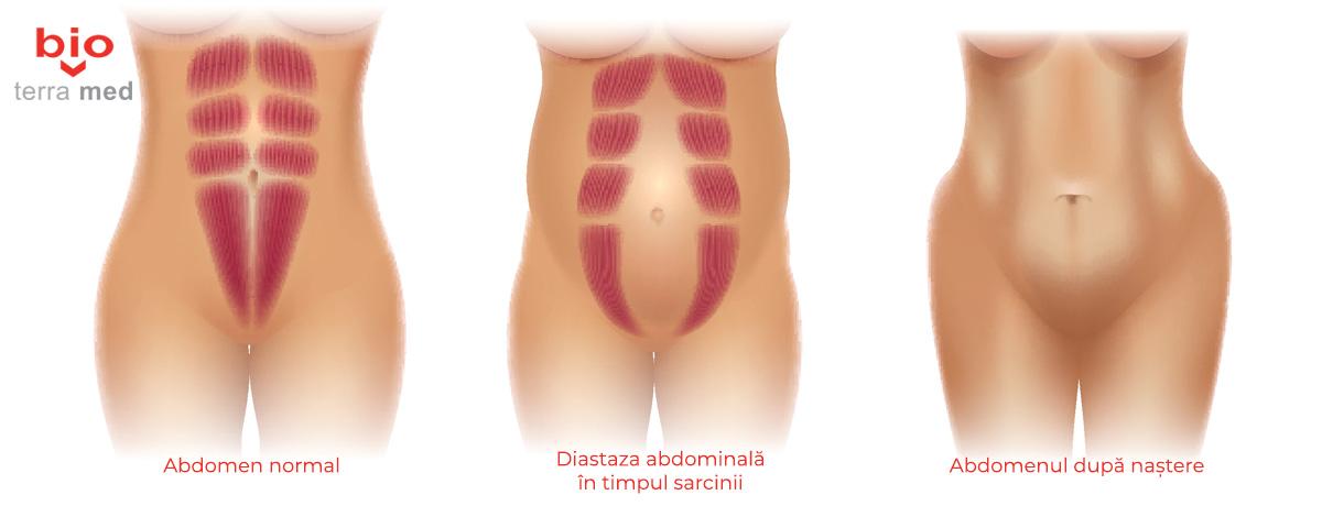 Diastaza abdominala