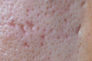Cicatrici post acneice - box scar