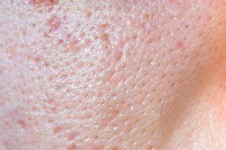 Cicatricile post acneice - IcePick scars