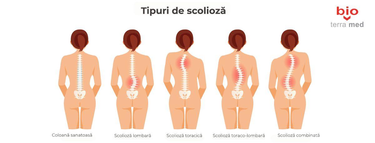 Scolioza-copii-1200x460.jpg