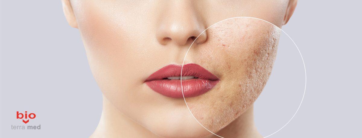 Tratamentul-cicatricilor-post-acneice-1200x460.jpg