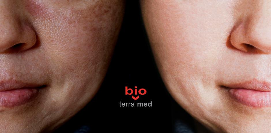 Melasma-Dr-Teodora-Predescu-Dermatologie.jpg