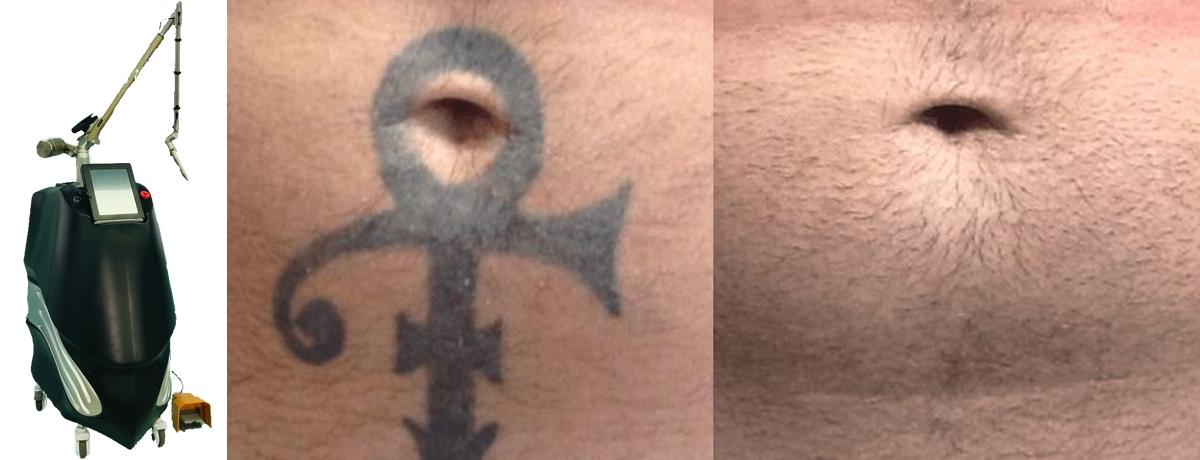 Indepartarea-cu-laser-a-tatuajelor.jpg