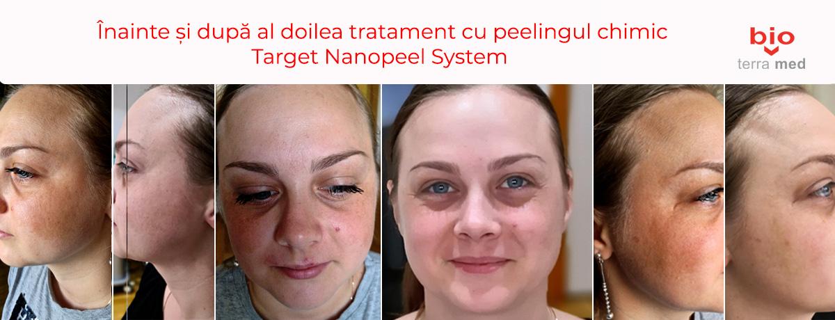 Peelingul-chimic-Target-Nanopeel-System-pentru-melasma-si-pete-pigmentare.jpg