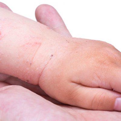 Dermatologie-Kids-Movement